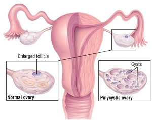 PCOD & PCOS